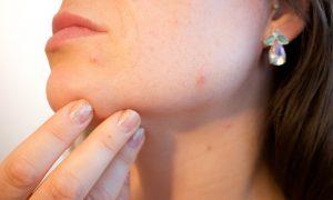 trądzik na twarzy - problem wielu osób